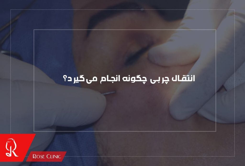 تزریق چربی چگونه انجام می گیرد