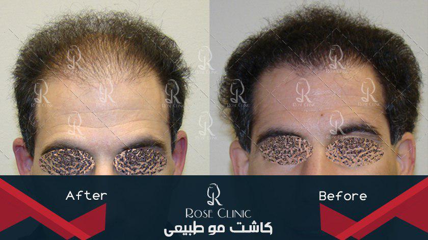,کاشت مو جلوی سر ,کاشت مو جواد خیابانی ,کاشت مو چقدر درد دارد ,کاشت مو چقدر زمان میبرد