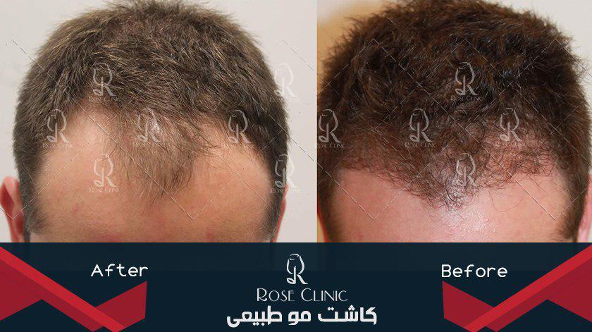 ,کاشت مو چقدر طول می کشد ,کاشت مو چقدر طول میکشه ,کاشت مو چقدر هزینه دارد ,کاشت مو چگونه است