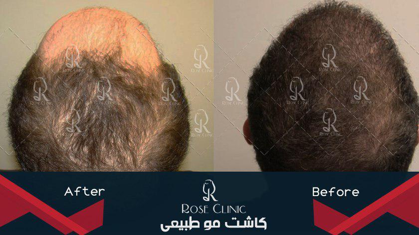 ,کاشت مو چگونه انجام میشود ,کاشت مو چند روز طول میکشد ,کاشت مو چه عوارضی دارد ,کاشت مو چیست