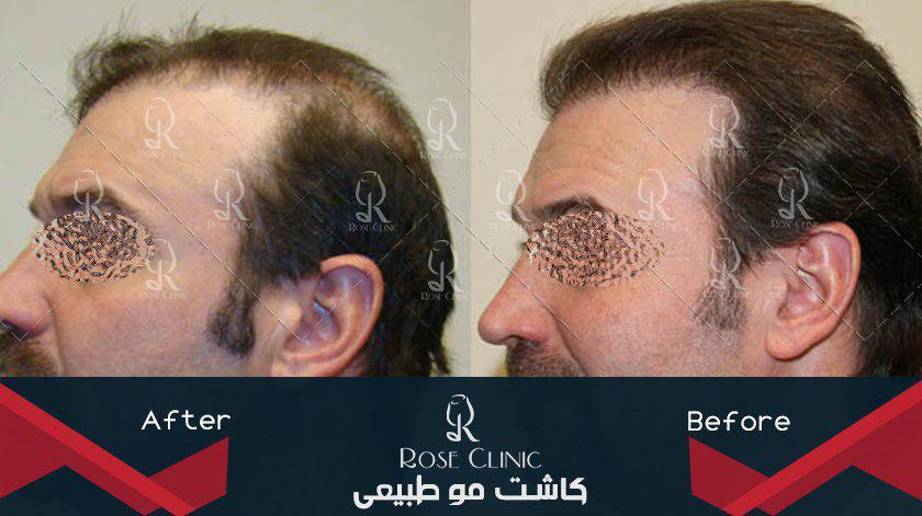 ,کاشت مو خط پیشانی ,کاشت مو خوب است یا بد ,کاشت مو خوب است یا نه ,کاشت مو خوب یا بد
