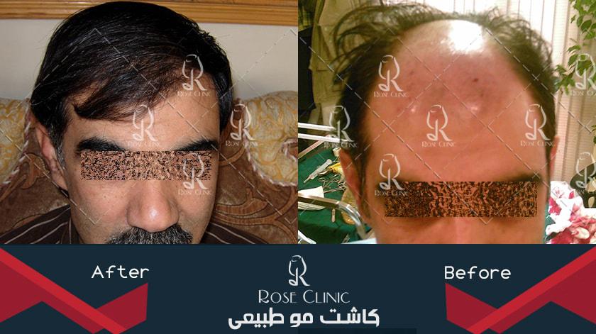 ,کاشت مو ,کاشت مو از بدن ,کاشت مو از بدن به سر ,کاشت مو اصفهان
