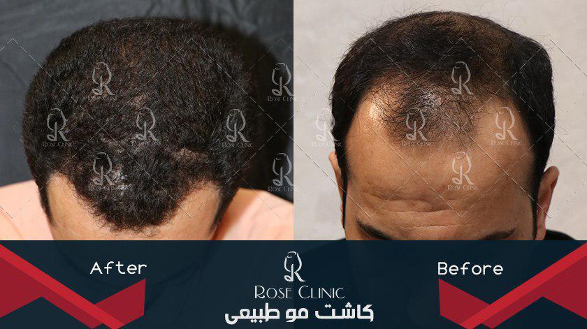 ,کاشت مو روش جدید ,کاشت مو روی پیشانی ,کاشت مو رویان ,کاشت مو زاهدان ,کاشت مو زمان رشد