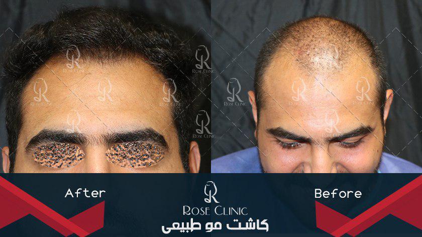 ,کاشت مو سریع ,کاشت مو سلول بنیادی ,کاشت مو سنندج ,کاشت مو سید جلال حسینی