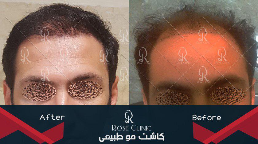 ,کاشت مو صادقیه ,کاشت مو صورت ,کاشت مو ضرر دارد ,کاشت مو ضرر دارد یا نه