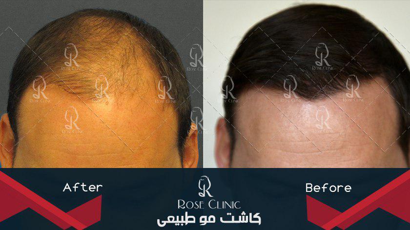 ,کاشت مو فیلم ,کاشت مو قابل رشد ,کاشت مو قبل از ریزش کامل
