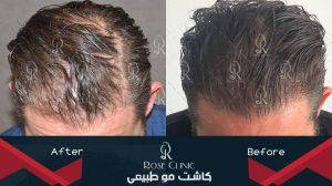 ترمیم مو,عوارض ترمیم مو,هزینه ترمیم مو,ترمیم مو چیست
