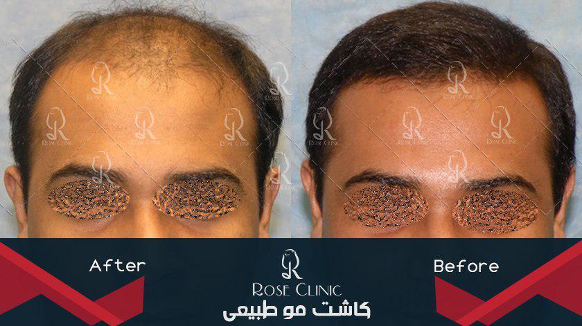 ,کاشت مو با بانک موی ضعیف ,کاشت مو با ضمانت ,کاشت مو با لیزر ,کاشت مو بانک ضعیف