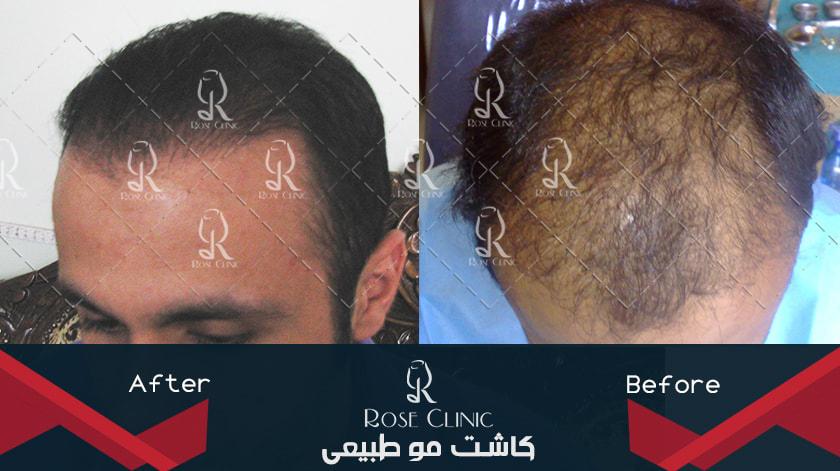,کاشت مو و ورزش ,کاشت مو ورم صورت ,کاشت مو وسط سر ,کاشت مو ونک