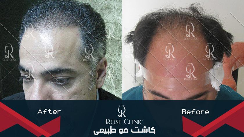 ,کاشت مو یا ترمیم مو ,کاشت مو یاسوج ,کاشت مو یحیی گل محمدی ,کاشت مو یزد