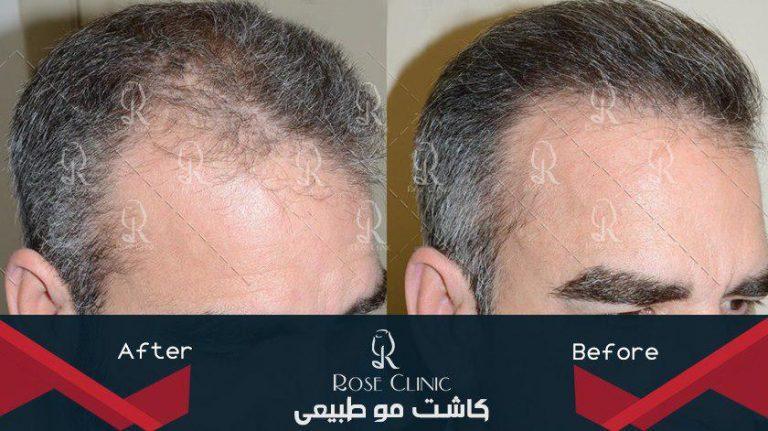 کاشت مو روش fit