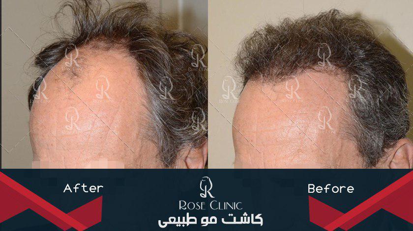 ,کاشت مو به روش fit ,کاشت مو به روش fue ,کاشت مو به روش fut ,کاشت مو به روش super fue