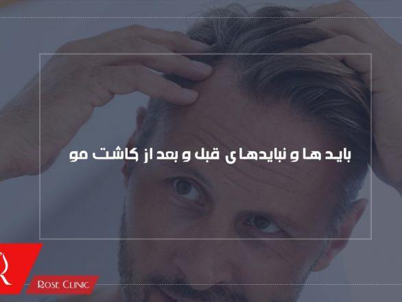 قبل از کاشت مو