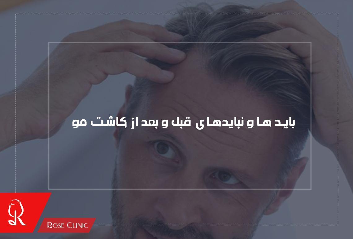 تصویر از اقدامات قبل از کاشت مو و توصیه های بعد از کاشت مو