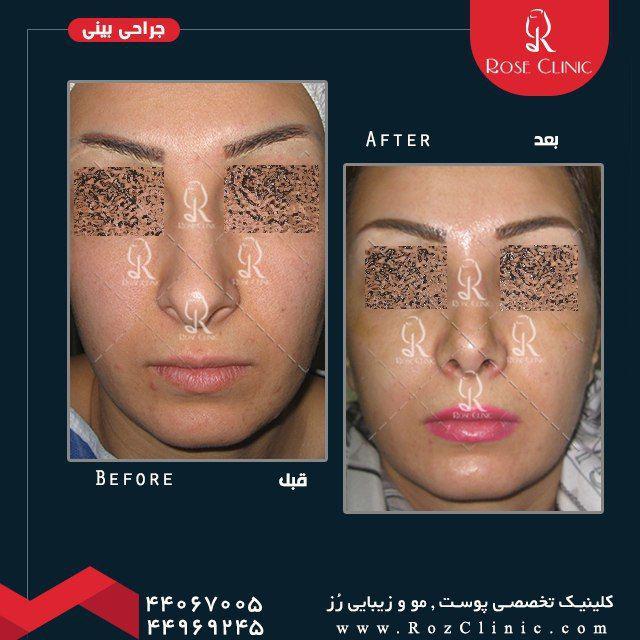,جراحی بینی خوب در تهران ,جراحی بینی زیبا ,جراحی بینی زیبایی