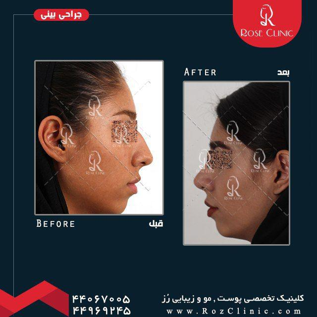 ,جراحی بینی بدون عمل ,جراحی بینی تضمینی ,جراحی بینی تهران