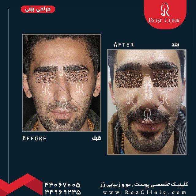 ,جراح بینی عالی در تهران ,جراحی بینی ,جراحی بینی استخوانی