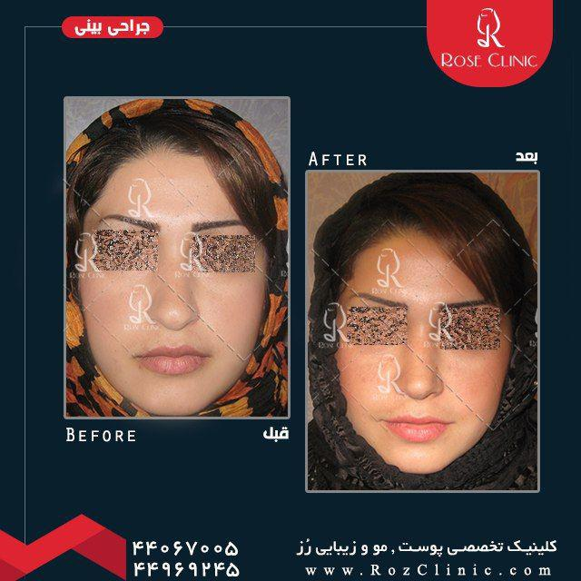 ,جراحی بینی و عوارض آن ,ضرر جراحی بینی