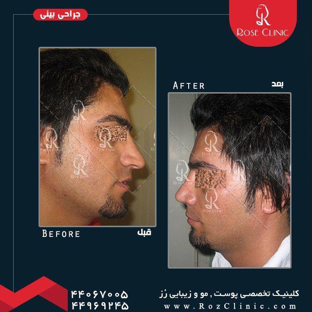 ,جراحی بینی لیزر ,جراحی بینی مردان ,جراحی بینی هزینه