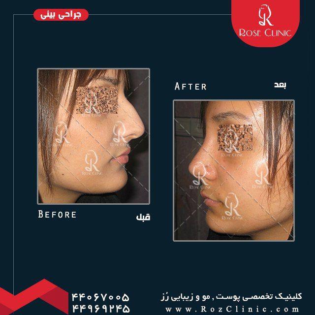 ,جراحی بینی فیلم ,جراحی بینی قبل و بعد ,جراحی بینی قوزدار
