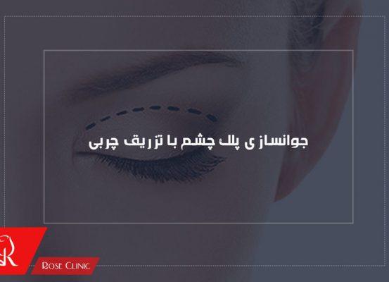 تزریق چربی در زیر چشم