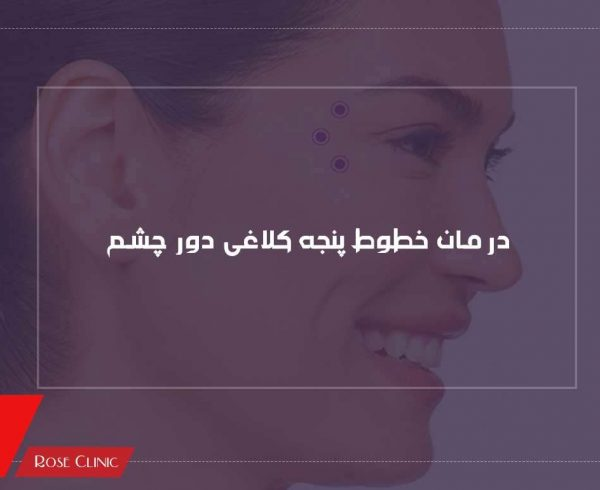 bottox-injection-for-crow-lines-600x490 صفحه نخست