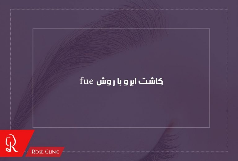 fue-eyebrow-transplant-768x519 کاشت ابرو به روش fue و معایب کاشت ابرو به روش fue