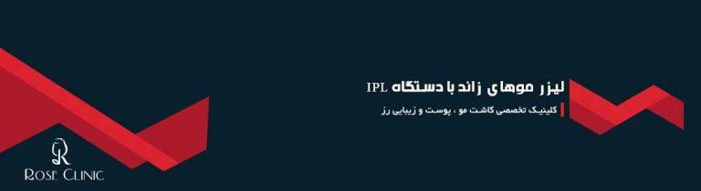 لیزر موهای زائد با دستگاه IPL
