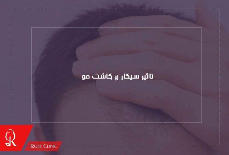 تاثیر سیگار بر کاشت موی طبیعی