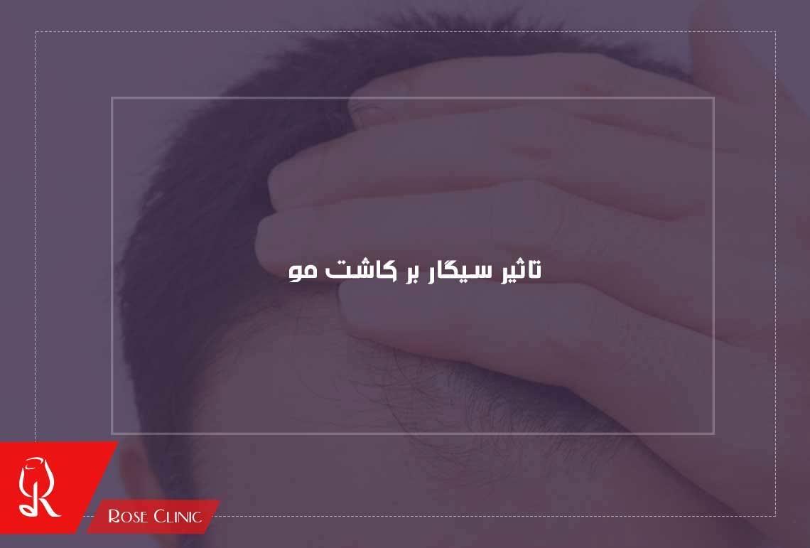 تصویر از تاثیر سیگار بر کاشت مو و مضرات آن