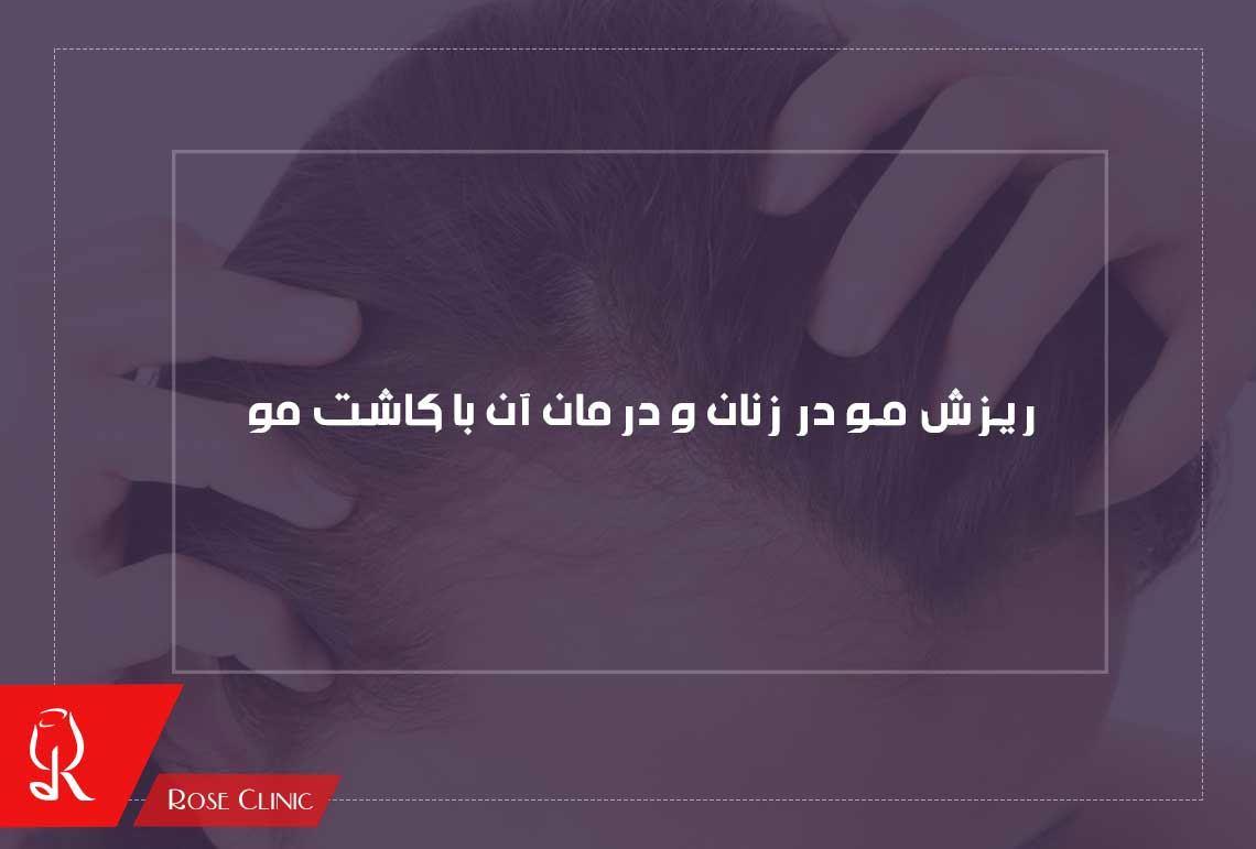 تصویر از ریزش مو در زنان و درمان آن با کاشت مو در کلینیک پوست و مو رز