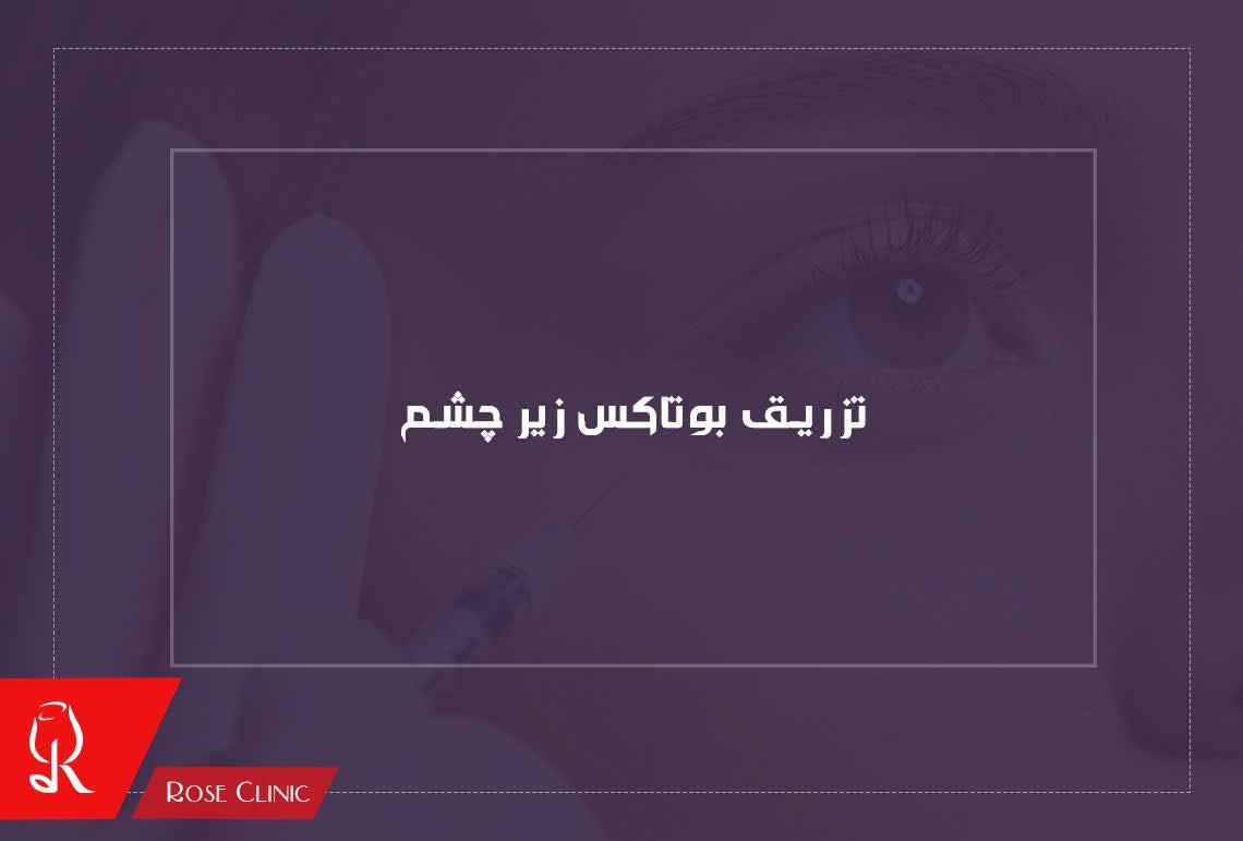 تصویر از تزریق بوتاکس زیر چشم و اثرات آن