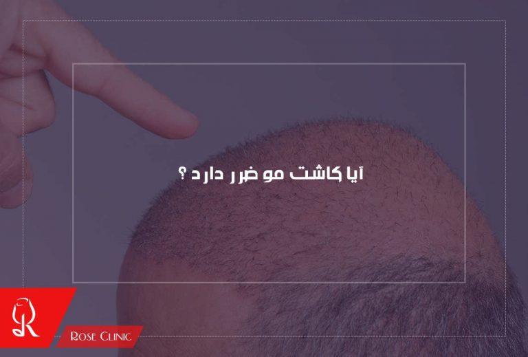 آیا کاشت مو ضرر دارد؟