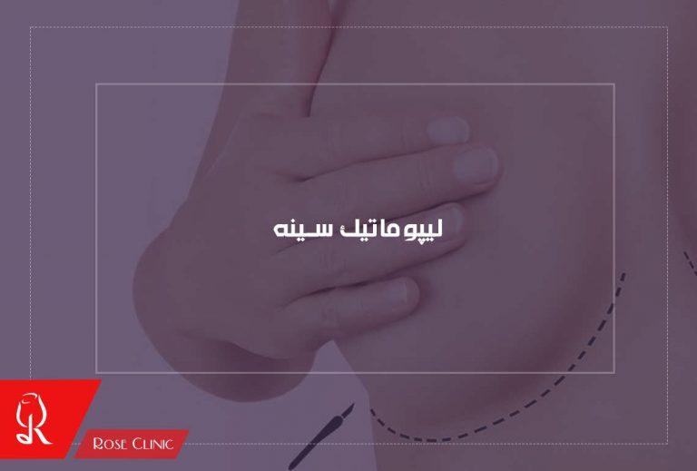 لیپوماتیک سینه