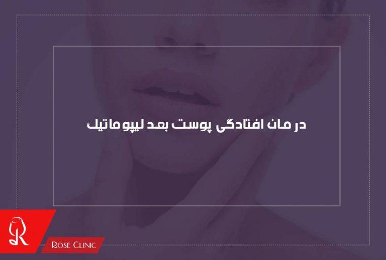 درمان افتادگی پوست و جلوگیری از آن بعد لیپوماتیک