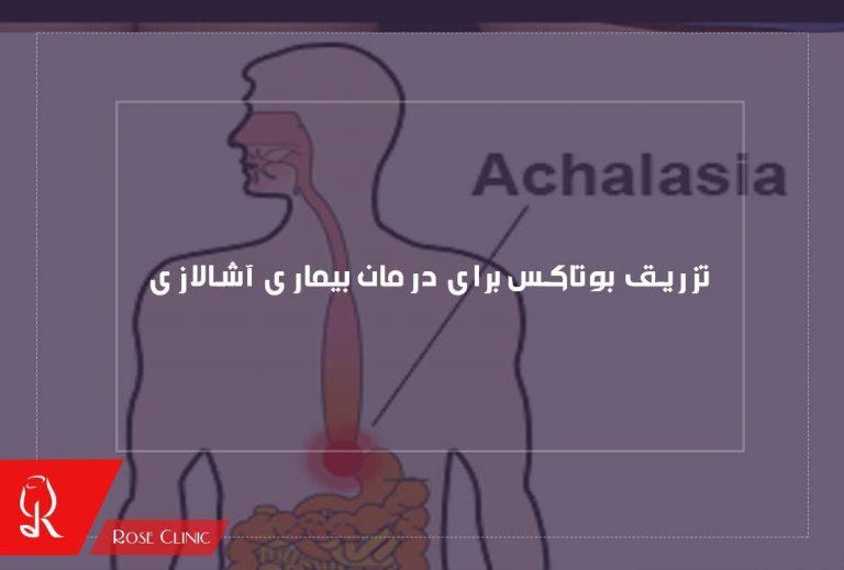 تزریق بوتاکس برای درمان بیماری آشالازی