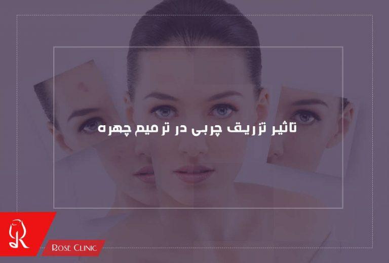 تاثیر تزریق چربی در ترمیم چهره