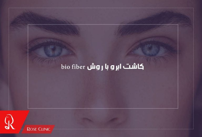 کاشت ابرو با روش bio fiber