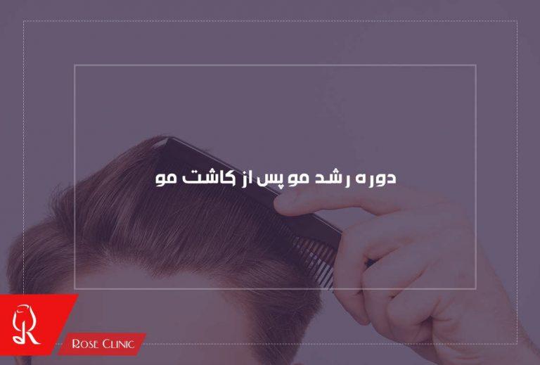 رشد مو پس از کاشت مو