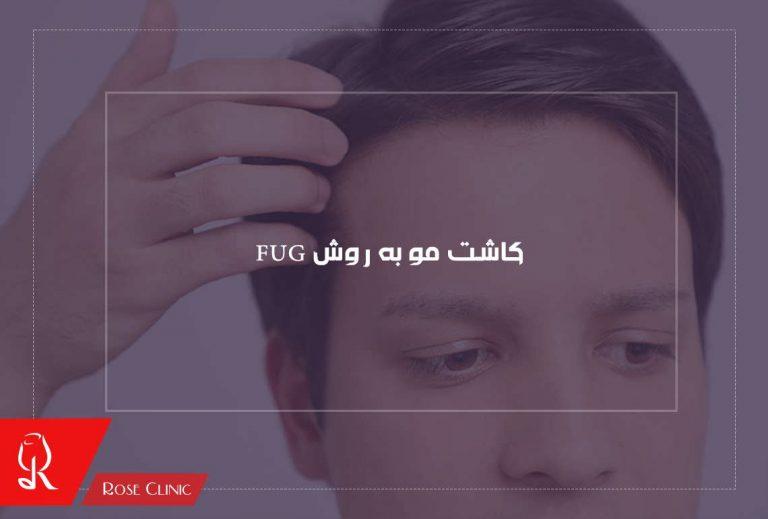 کاشت مو به روش FUG