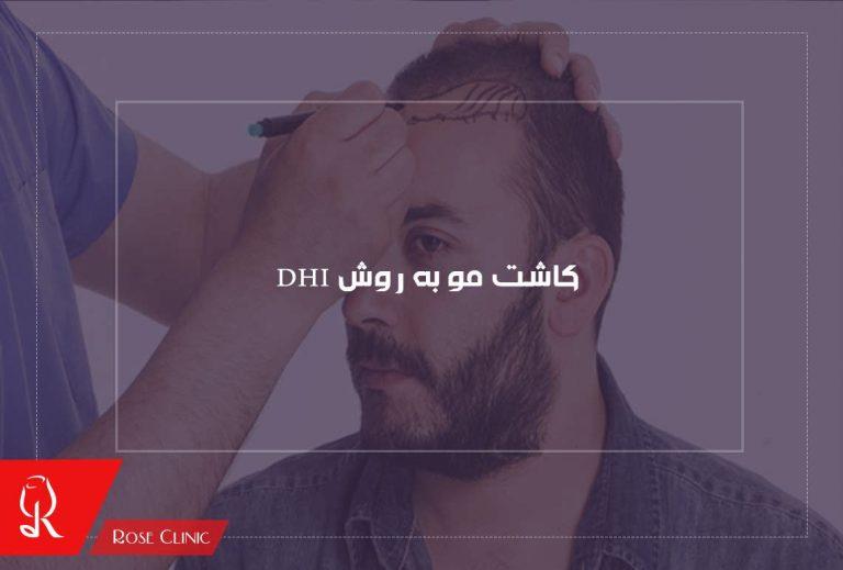 کاشت مو به روش DHI