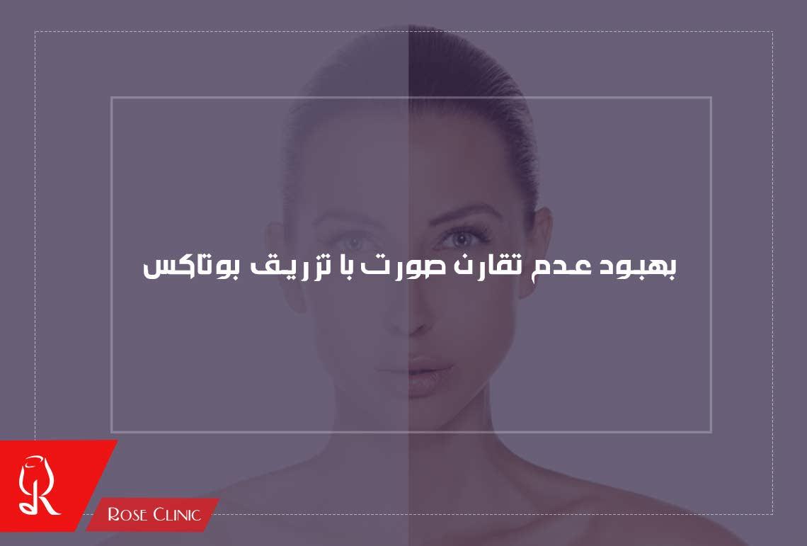تصویر از درمان عدم تقارن صورت با تزریق بوتاکس
