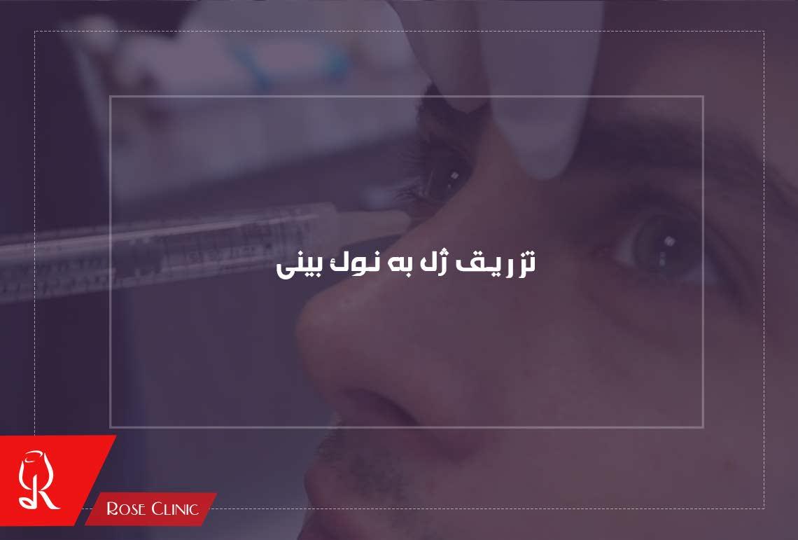 تصویر از تزریق ژل به نوک بینی و مزایای آن