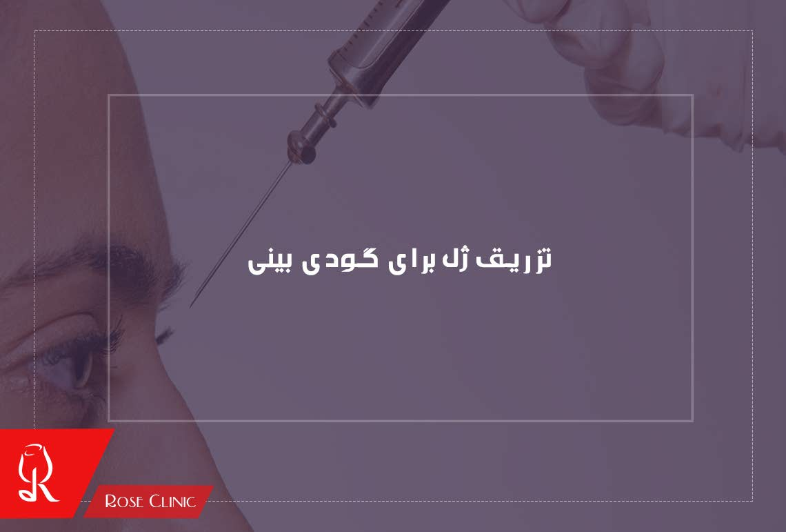تصویر از نکاتی در مورد تزریق ژل برای گودی بینی