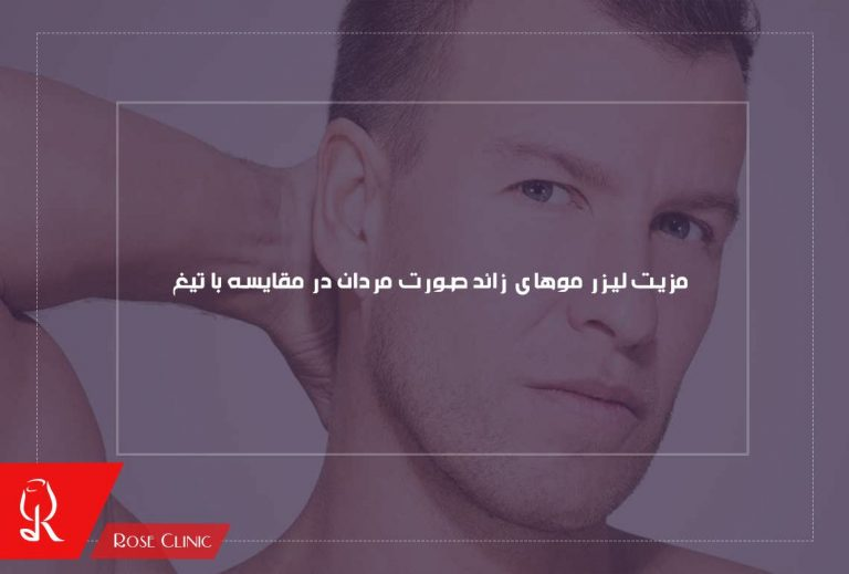 مزیت لیزر موهای زائد صورت مردان در مقایسه با تیغ