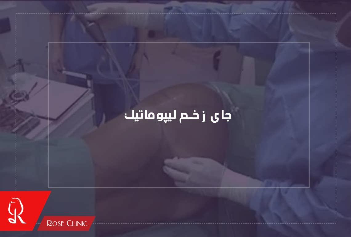 تصویر از هر آنچه باید در مورد جای زخم لیپوماتیک بدانید