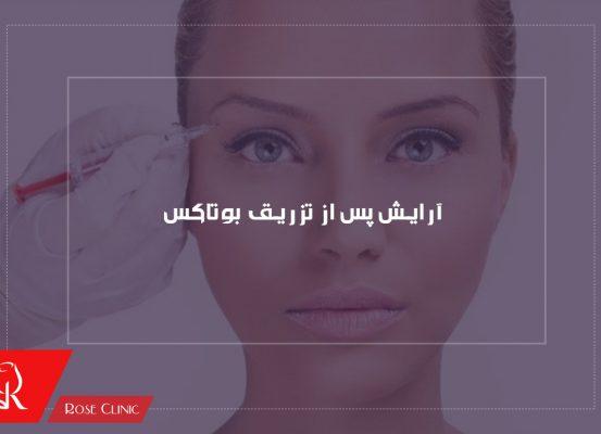 آرایش پس از تزریق بوتاکس