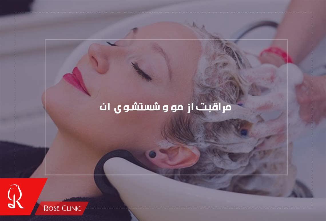 تصویر از مراقبت از مو و شستشوی آن