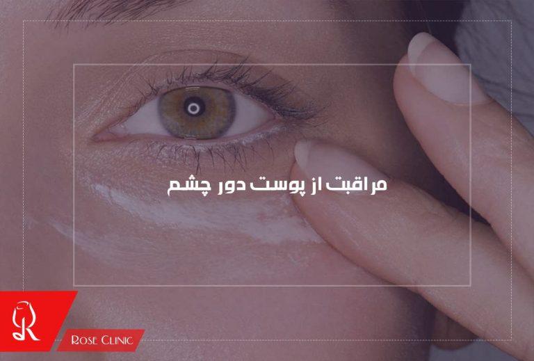 مراقبت از پوست دور چشم
