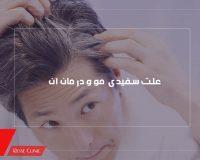 علت سفیدی مو و درمان آن
